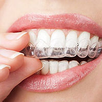 Person Placing Her Clear Aligner