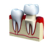 Computerized Image of a Dental Crown