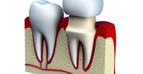 Get the Facts About Dental Crowns Heber Springs