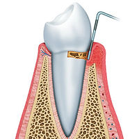 Image Showing Tooth With Gum Disease