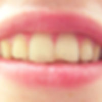 Person With a Chipped Tooth