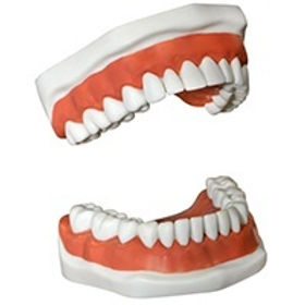 A set of dentures placed on a stone model