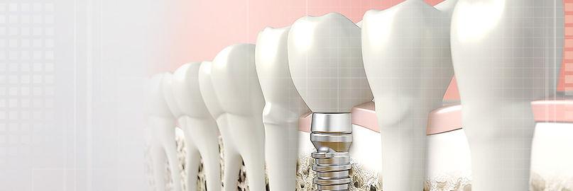 A Row of Computerized Teeth