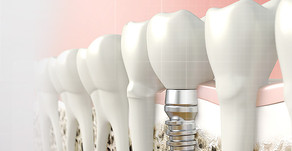 Who To Call For A Dental Restoration