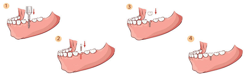 The Four Steps to Dentl Implants