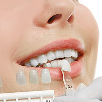 Dental Professional Matching a Patients Tooth Shade