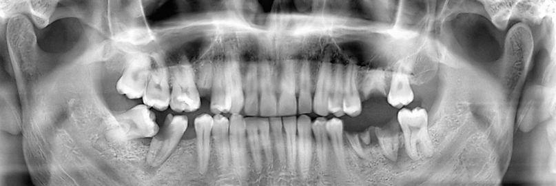 Dental Panoramic X-ray