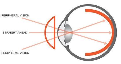 how to prevent myopia