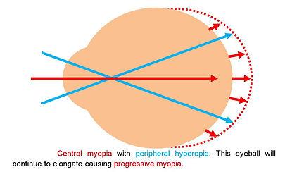 how is myopia formed