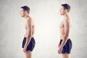 Checking Your Posture: A Wholistic View From Head to Toe II