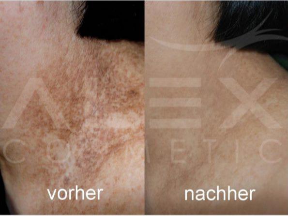 herbs2peel-vorher-nachher-01-e1577457027