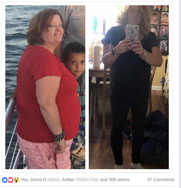 hcg before and afte