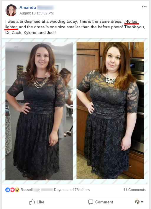 Amanda's before and after using the HCG diet, weight loss with Dukan diet