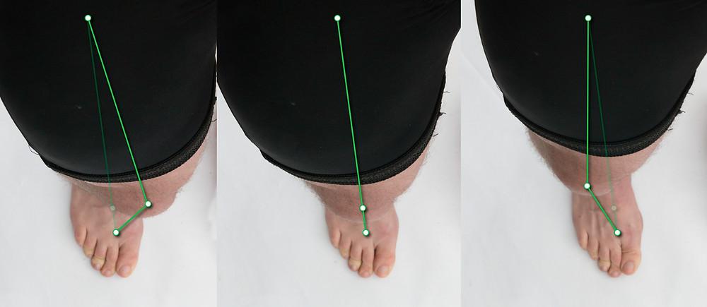 A boka megbillentése egyben rotációs hatást is okoza combban és a lábfejben