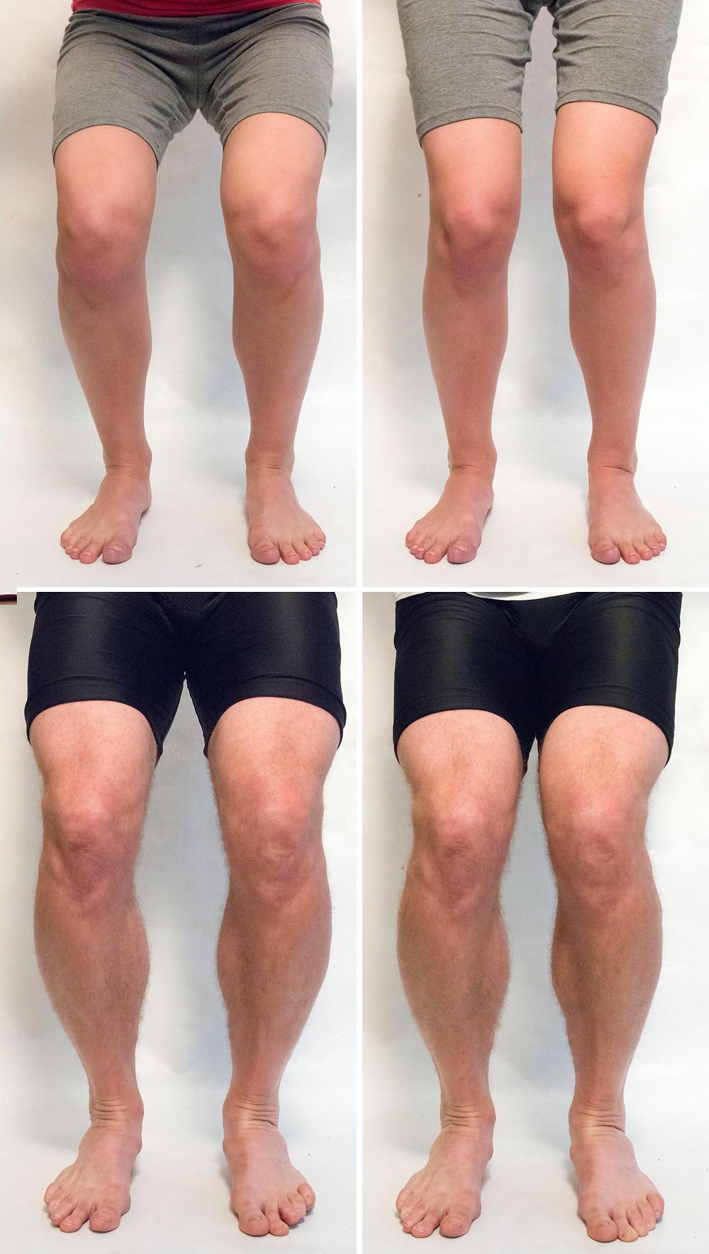 A bal oldali képeken a tengelyek megtartva, az ízületek stabilizálva, a jobb oldali képeken a térdek a gyenge stabilizálás miatt befelé fordulnak