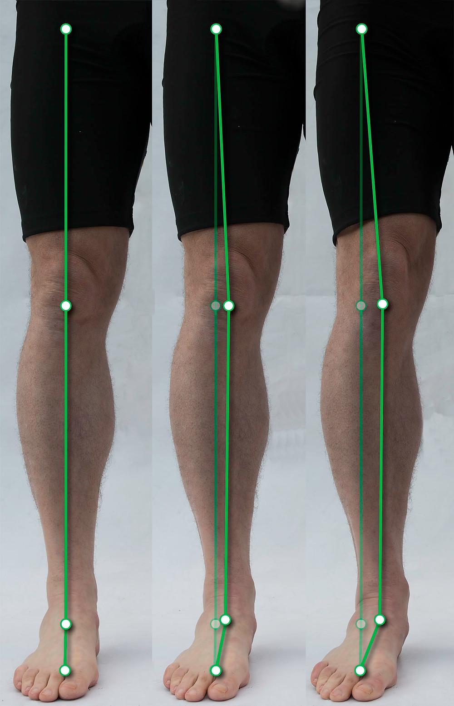 A lelapult boltozatot megemelhetjük a lábujjainkat a talajra szorítva vagy az alsó végtag komplex izomszerkezetét használva
