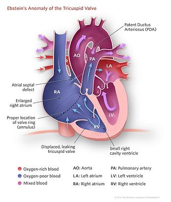 ebsteins-anomaly-tricuspid-valve-illustr