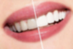 http___www.thedentalguide.net_wp-content