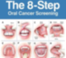 oral-cancer-screening.jpg