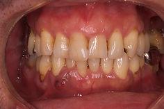 歯周病サンプル画像.jpg