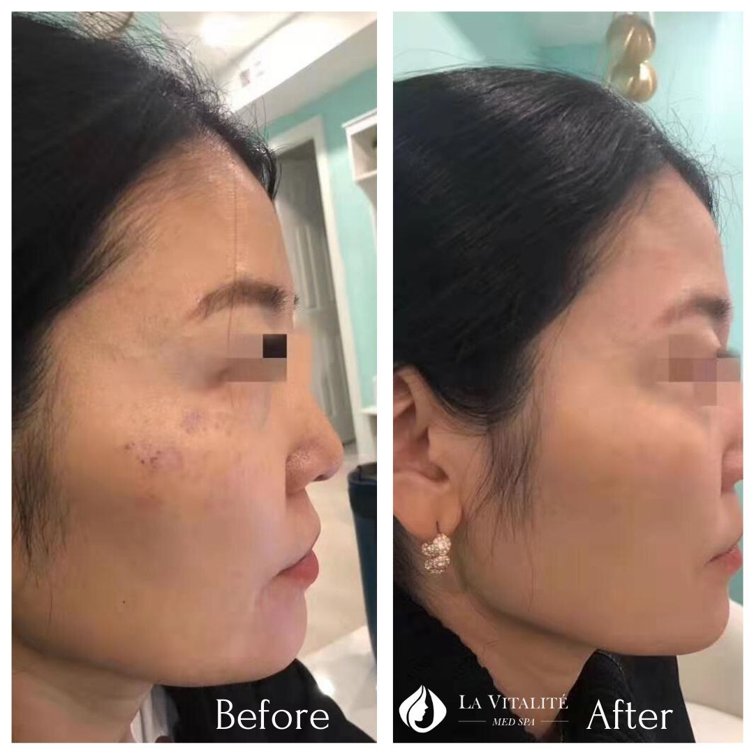 Before and After Pigmentation #1.jpg