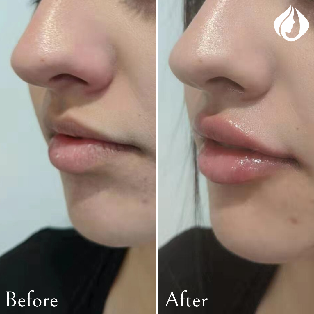 Before and After Lip Filler.png