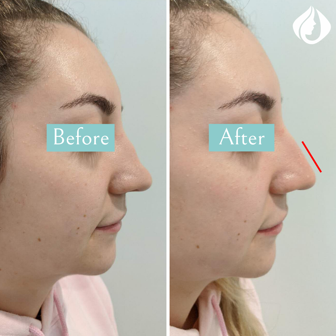 Before and After Nose Shaping.png