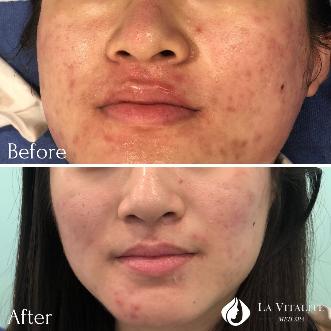 Before and After - Microneedling #3.jpg