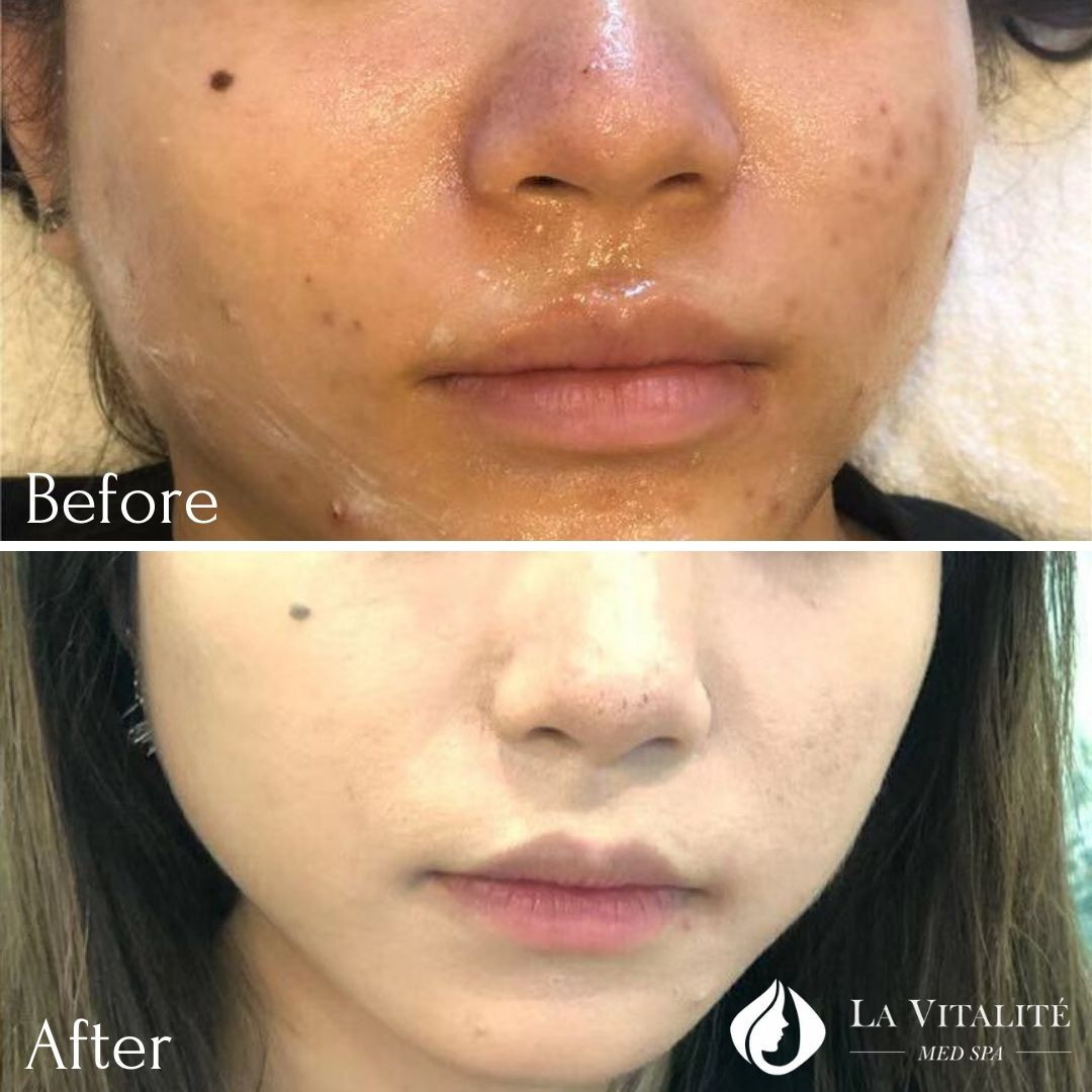 Before and After - Microneedling #2.jpg