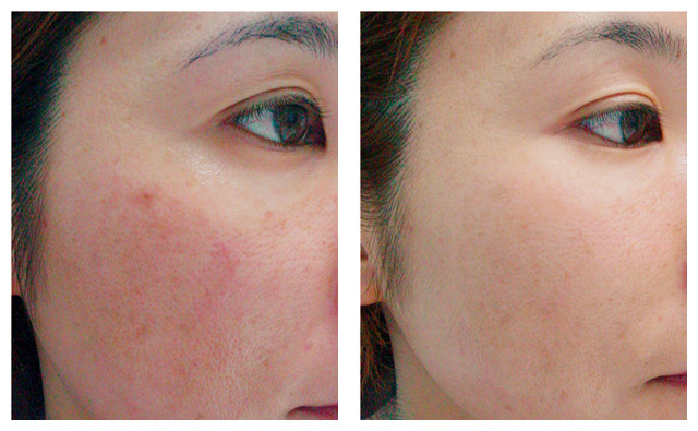 Before and After - Rosacea.jpg