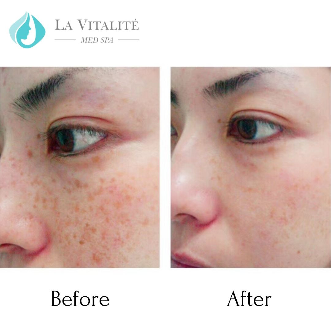 Before and After Pigmentation #2.jpg