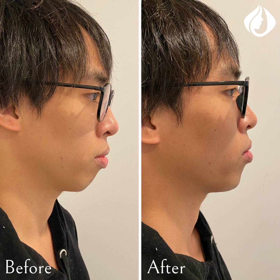 Before and After Chin Filler.png