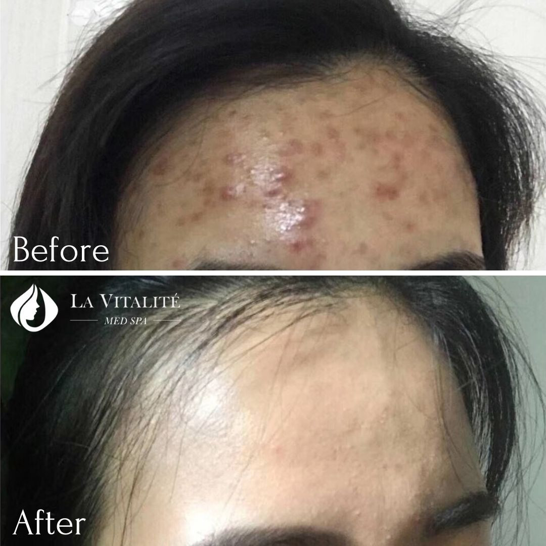 Before and After - Microneedling #1.jpg