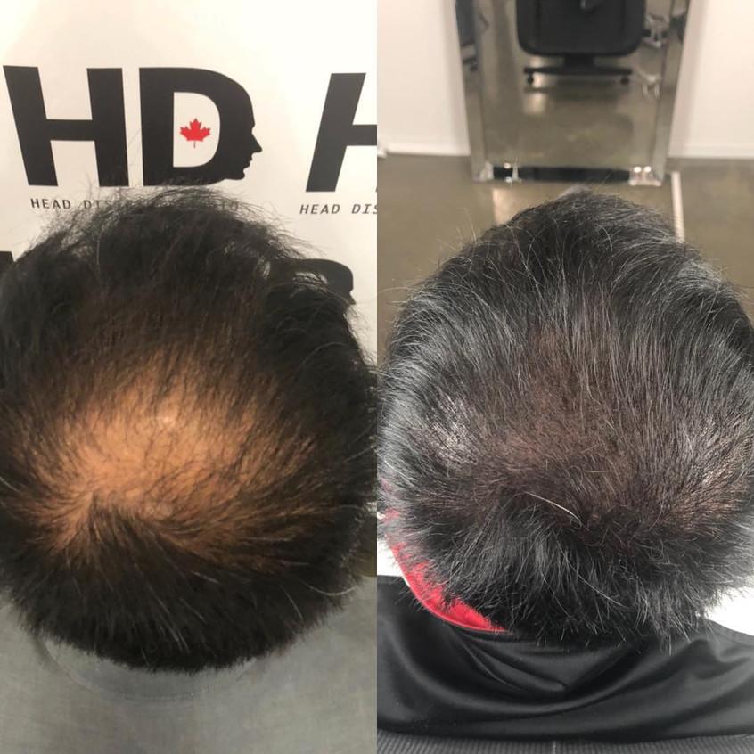 Head District tête homme cheveux