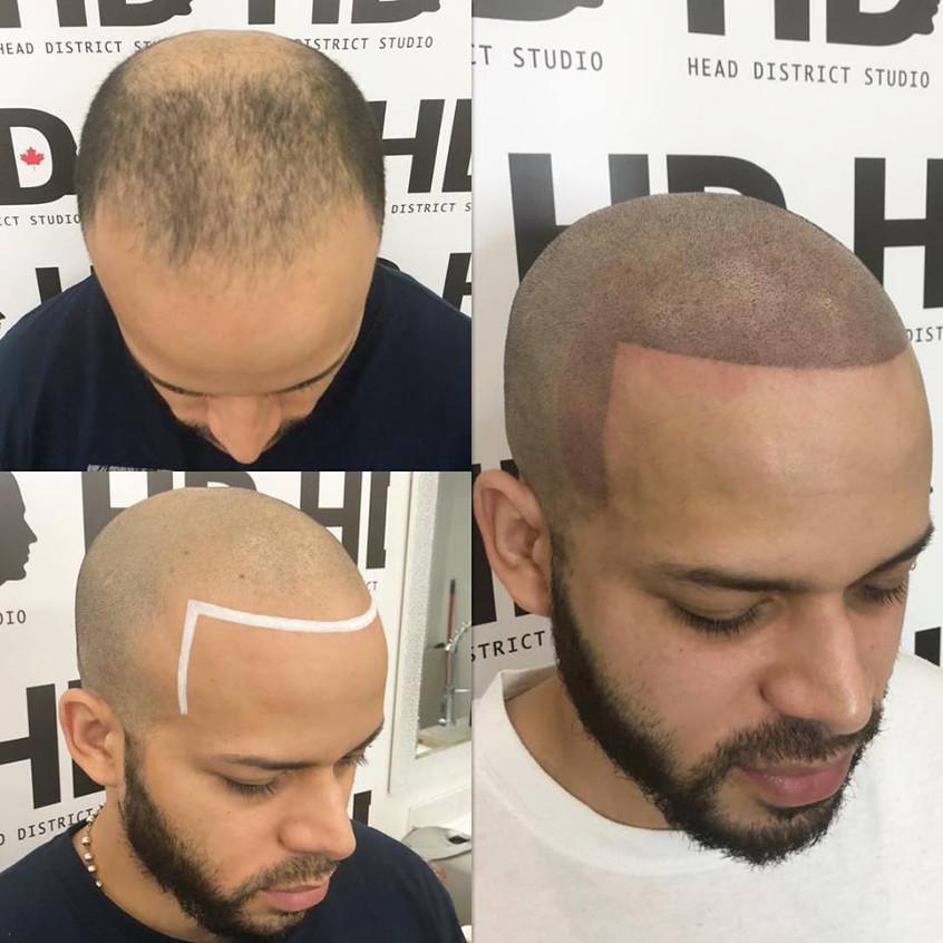 Head District Micropigmentation