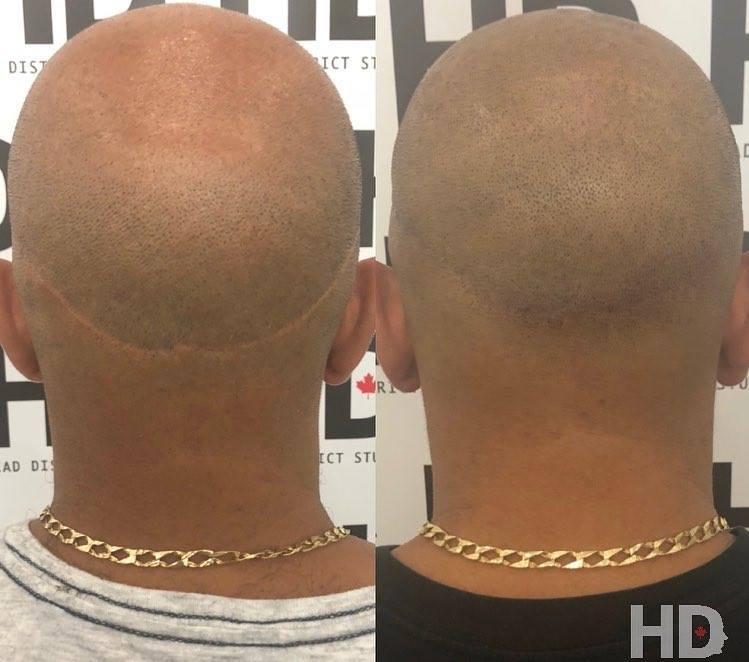 Head District cacher cicatrice