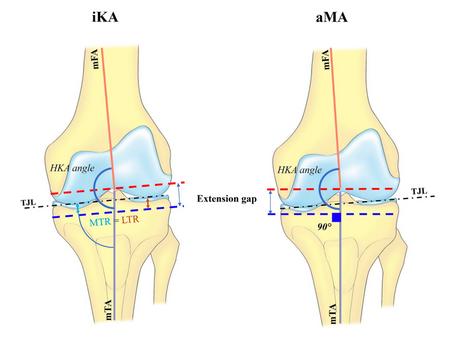 Knee Replacements: Philosophies