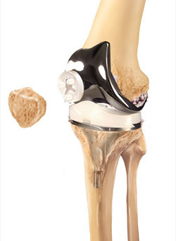 Knee Replacements: What's involved in the operation?