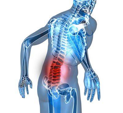lesiones en la espalda