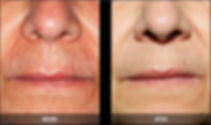 Nordlys B&A face spider veins.png