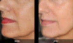 Nordlys B&A lines and wrinkles.png
