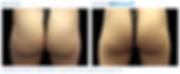 Emsculpt_PIC_Ba-card-female-buttock-005_