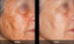 Nordlys B&A face sun spots.png