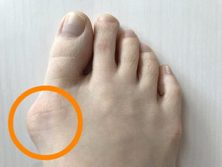 A solution for Bunion pain