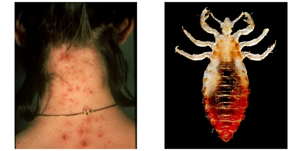 identify head lice while travelling