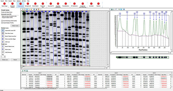 Gel Analysis Colony Count Software