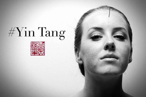 photo courtesy: Bob Wong @artofacupuncture