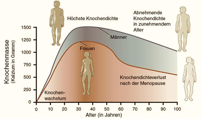 Degenerationsprozesse im Knochengewebe ayurvedisch behandeln