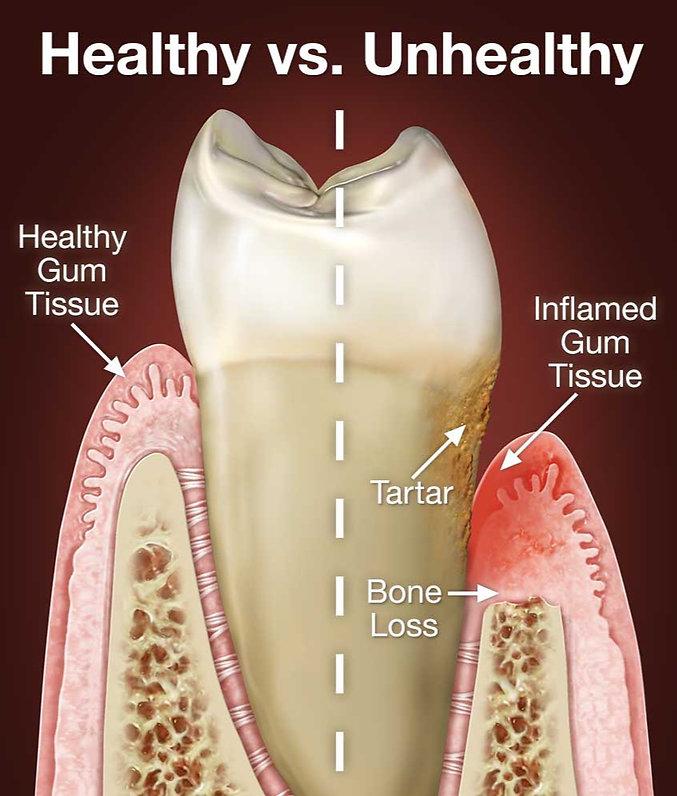 periodontal-disease_edited.jpg