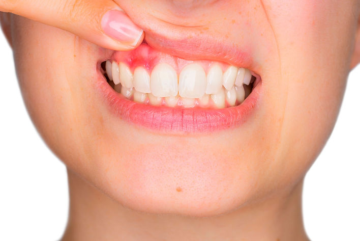 periodontics.jpg